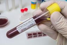coronavirus-urgence-mondiale-sante-OMS.jpg